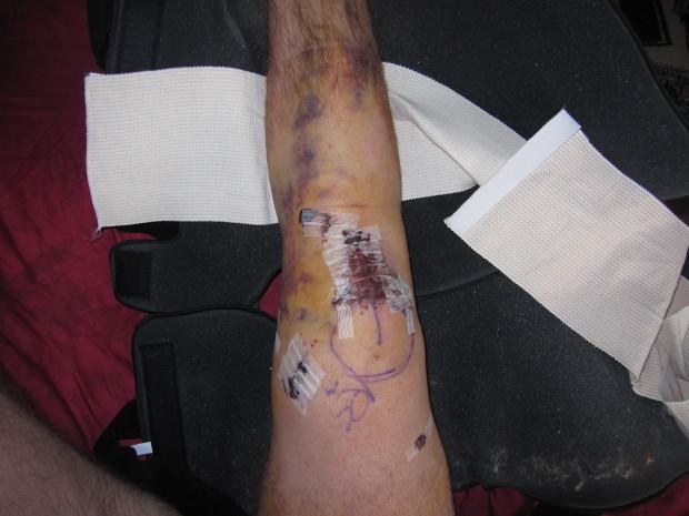 Post ACL surgery... so fun...