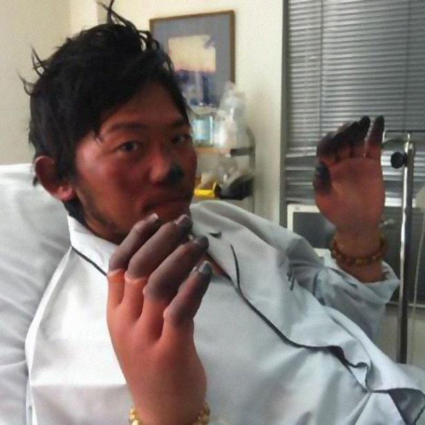 Nobukazu Kuriki after his accident in 2012 that lead to losing 9 of his fingers.