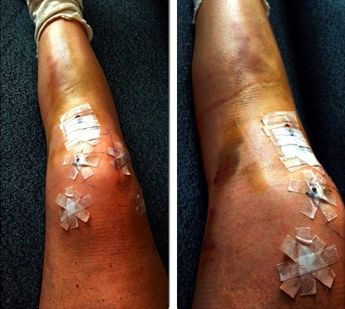 Lindsey's knee after ACL, MCL, tibial plateau surgery in 2013.