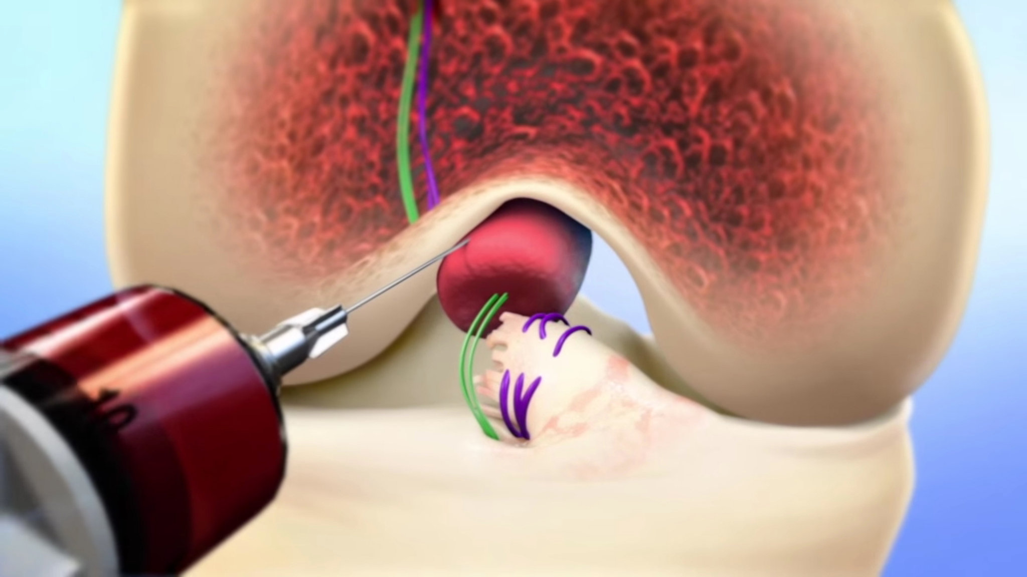 A patient's blood is injected into a sponge-like bridge that will help both ends of the torn ACL reconnect and heal in a procedure surgeons recently completed