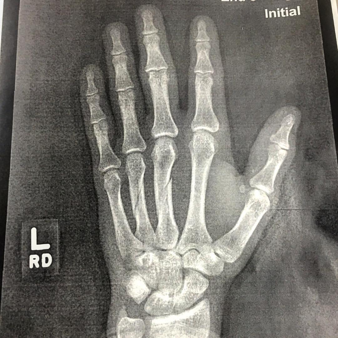 He broke his hand.