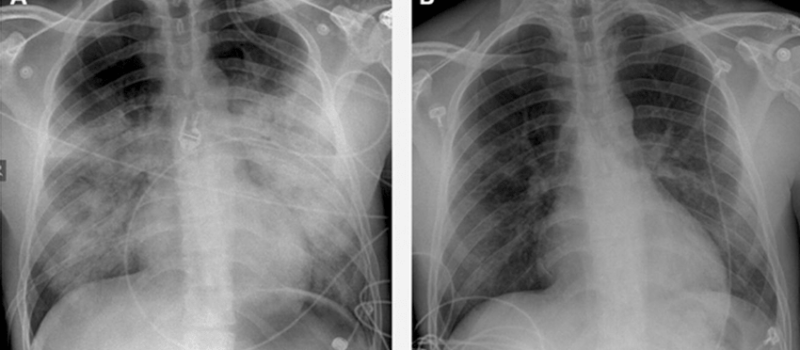 Image of High Altitude Pulmonary Edema at different stages of being treated