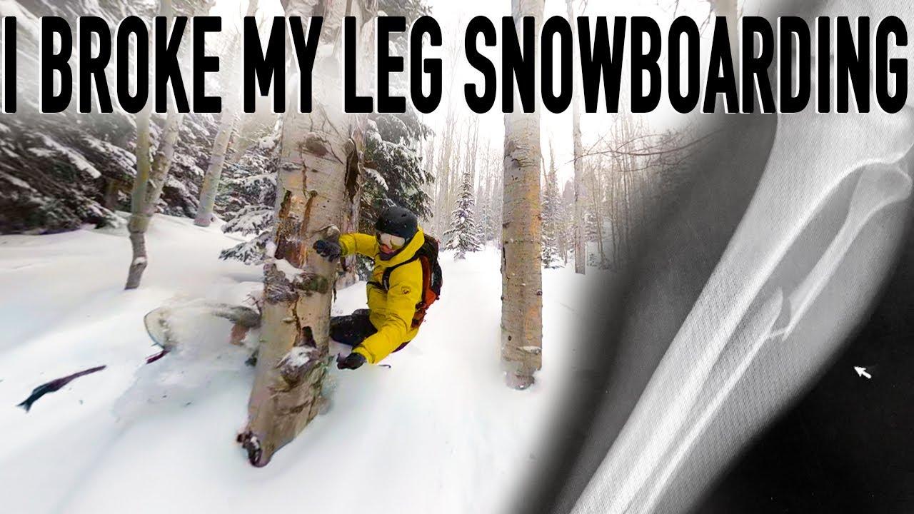 snowboarder, broken leg,