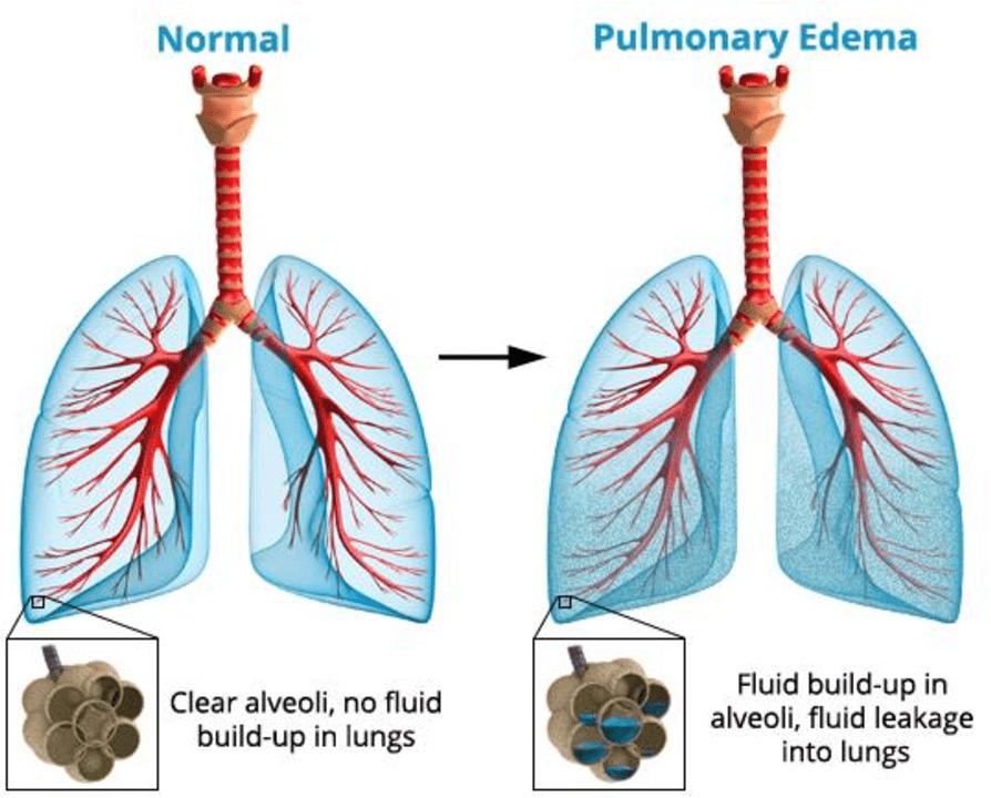 diagram of high altitude pulmonary edema
