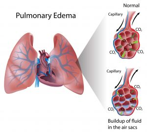 Drawing of lungs shows pulmonary edema