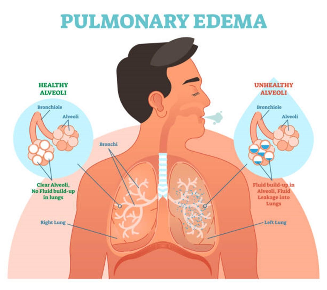 HAPE lung visualization