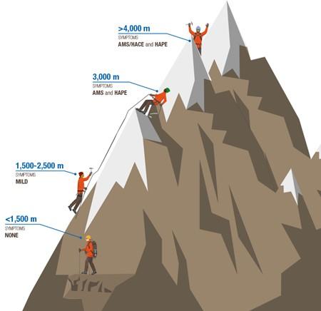 Altitude sickness visual