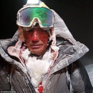 frostbite, Elbrus